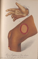 Colour illustration of a hand and leg affected by leprosy
