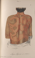 Colour illustration of  a variety of Lepra leprosa as seen on a patient's back
