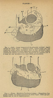 Plate 1, showing the appearances of the substantia nigra in a section of the brain