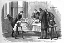 This is a black and white illustration of an operation from W. Watson Cheyne, <em>Antiseptic Surgery</em>, 1882. Wellcome Trust Images