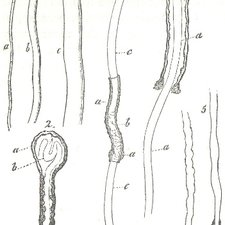 Nerve axons and their neurolemma as depicted in Rudolf Albert von Kölliker's Manual of human histology. Volume 1. London: printed for the Sydenham Society, 1853 [KCSMD Historical Collection QM551 KOL]