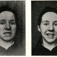 Normal volitional facial movements (left) and mimic palsy of left side of face in laughing (right), from Samuel Alexander Kinnier Wilson's Modern problems in neurology. London: Edward Arnold, 1928 [ KCSMD Historical Collection RC346 WIL]