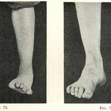 These images show a soldier with 'hysterical contracture' of his feet and toes before and after treatment. Taken from: Frederick W Mott. War neuroses and shell shock. London: Henry Frowde: Hodder & Stoughton, 1919 [ IoP Historical Collection h/Mot]