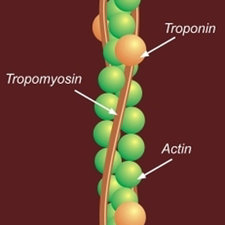 colour drawing showing actin as a chain of greenish spheres with bands running along in brown labelled Tropomyosin containing a few spheres labelled Troponin